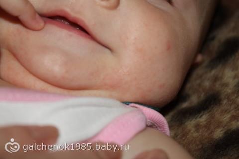 аллергия на лице и груди