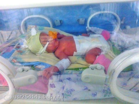 Дети рожденные на 32 неделе беременности