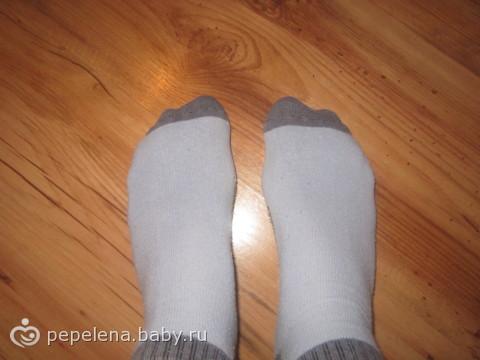 Болят косточки на больших пальцах ног — что делать?