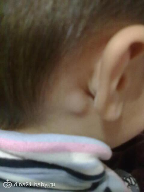 увидела у ребенка за ухом шишку, решила у вас спросить что это может быть.  Журнал.  13 Октябрь 2012 в 21:05.