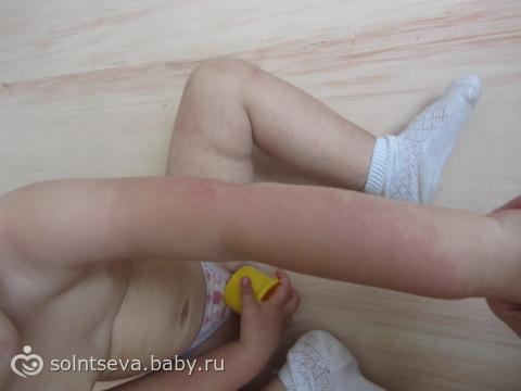 аллергия на солнце у детей