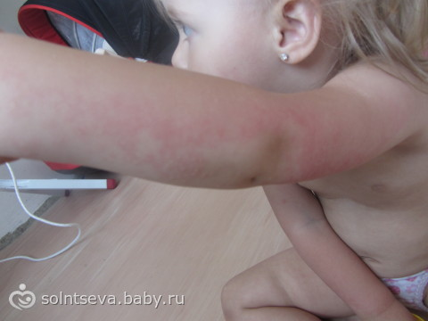 аллергия на солнце у детей фото