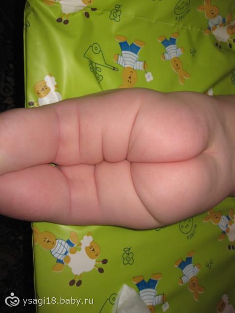 Не совпадают складки на ножках у ребенка
