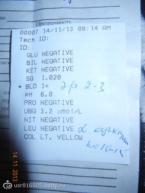 Col negative в анализе мочи месячные и общий анализ крови