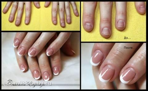 Можно ли нарастить ногти если они короткие