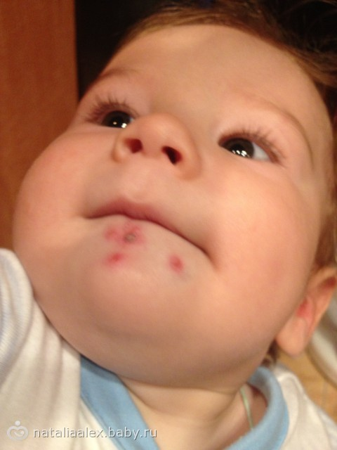 Прыщики около губ у ребёнка
