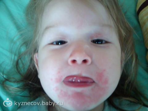 У ребенка пятна вокруг губ что это 10