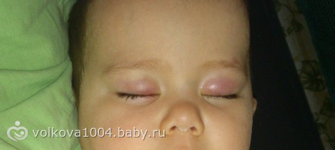 Опухли веки у ребенка