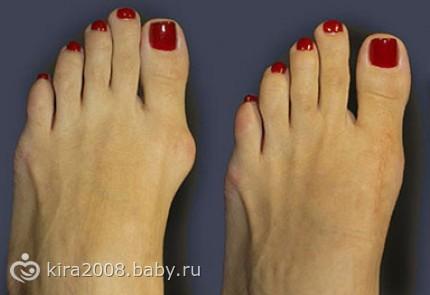 Косточки на ногах: лечение в домашних условиях (причины и ...