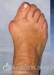Заболевание косточки на большом пальце ноги
