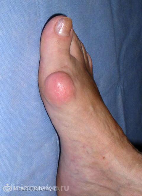 Удаление косточки на большом пальце ноги: операция