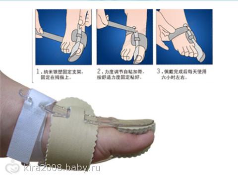 Причины появления и что делать если косточка на ноге выше ступни опухла и болит