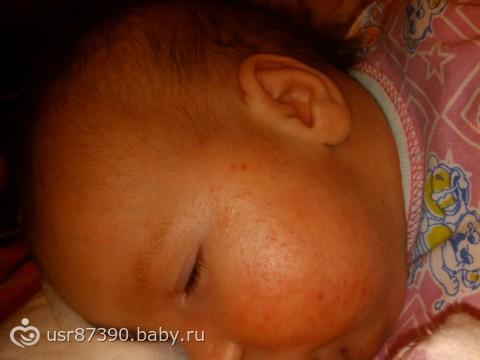 аллергия на молочку у взрослого симптомы