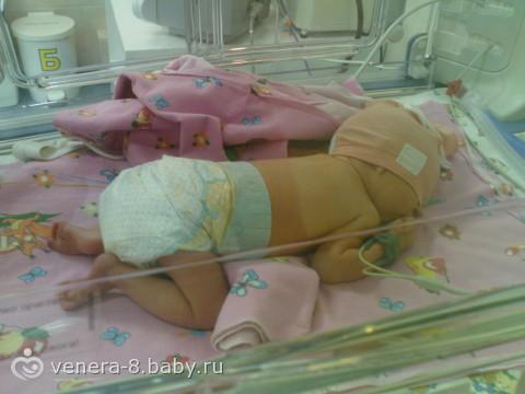 Как выглядит ребёнок в 35 недель беременности фото