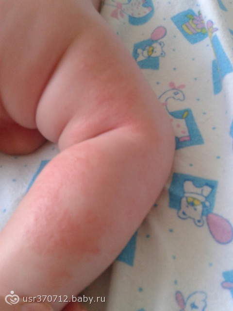 аллергия у детей симптомы и лечение фото
