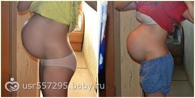 Живот опускается при беременности