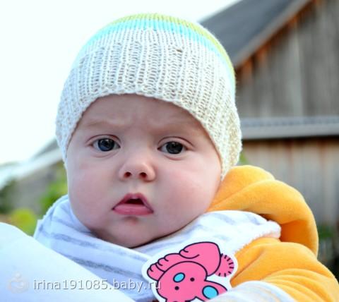 Белая прядь волос у новорожденных